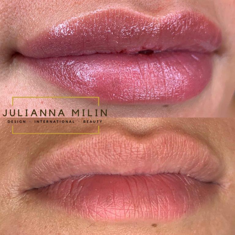 Julianna Milin permanent lips